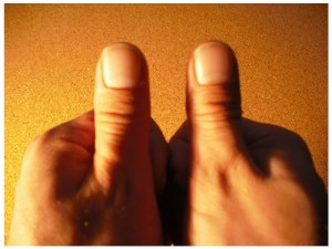 My thumbs are round, which is apparently an afront to Steve Jobs and his nimble elven-fingered lackies.